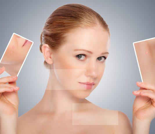 Comment bien prendre soin dune peau grasse